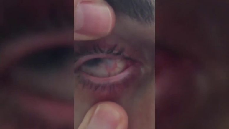 Graphic: Ontario man shows eye blinded by water-borne parasite 1